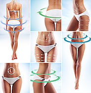Effectiveness of Liposuction