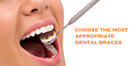 5 Factor that will Help you to Choose the Right Braces | Houston Dental Care