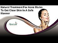 Natural Treatment For Acne Marks To Get Clear Skin In A Safe Manner