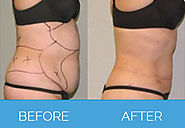 Want to Go for Liposuction? 5 Important Things You Need to Know about it