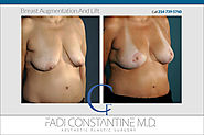 BREAST LIFT - COnstantine Plastic Surgery