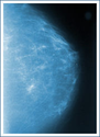 Seattle Mammography, Breast Imaging, Via Radiology
