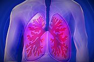 Why Lung Cancer Screening Can Be Lifesaving - News - Via Radiology