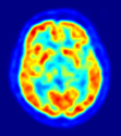 PET Scans Could Aid Huntingtons Disease Research