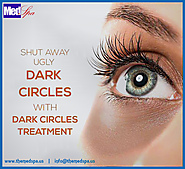 Best Home Remedies Tips To Remove Dark Circles Under Eyes