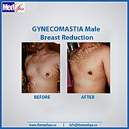 Gynecomastia Treatment in Delhi – Know more about its Symptoms