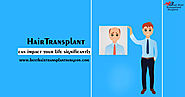 Hair Transplant Surgeon in Delhi – How To Find the Right Surgeon?
