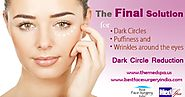 Do You Know About Dark Circles Treatment?