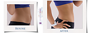 Best Liposuction India offers Vaser liposuction in Delhi
