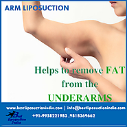 Arm liposuction surgery – benefits!