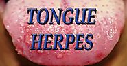 Herpes On Tongue: Causes, Symptoms And Guaranteed Natural Treatment
