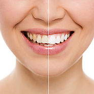 Teeth Whitening in New Friends Colony - Friends Dental Studio