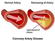 Coronary Angioplasty: A Life Saving Procedure