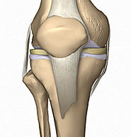 Orthopedic Surgeon from the Best Orthopedic Hospital in India