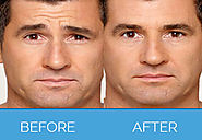 Botox Treatment, Anti Wrinkle Treatment for Men and Women