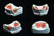 Know about denture relines in Sydney