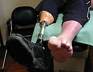 Amputation Compensation Claims in UK - Seriously Injured