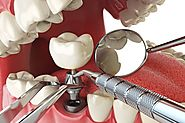 Reason to hire implant retained dentures