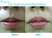 Lip Reshaping Cosmetic Surgery, Lip Reduction Clinic, Best lip surgeon in Delhi
