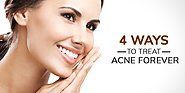 4 Ways to Treat Acne Forever