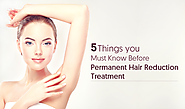 5 Things you Must Know Before Permanent Hair Reduction Treatment