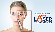 Know all about Acne Laser Treatments