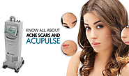 KNOW ALL ABOUT ACNE SCARS AND ACUPULSE