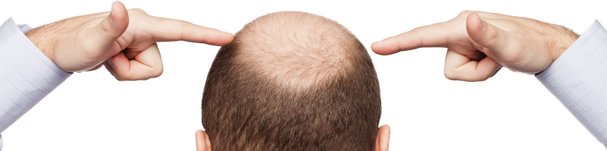 Headline for Male Pattern Baldness Treatment - How To Get Your Hairs Back