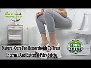 Natural Cure For Hemorrhoids To Treat Internal And External Piles Safely