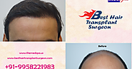 Do You Know Everything about Hair Transplant