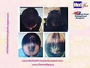 Hair transplant doctor – Choose an experienced and skilled surgeon