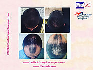 FUE Hair Transplant Surgery at MedSpa Clinic