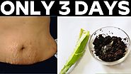 Stretch marks removal in Just 3 Days At Home