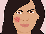 Here's What Your Dermatologist Wants You To Know About Eczema