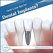 Oral Care Tips for Dental Implants