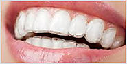 Get The Affordable Orthodontic Treatment for Teeth Straightening