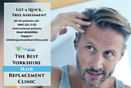 The Best Yorkshire Hair Replacement Clinic - Rejuvenate