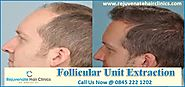 Follicular Hair Transplant In UK - Rejuvenate Hair Clinics