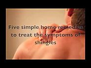 Treatments for shingles: 5 effective home remedies