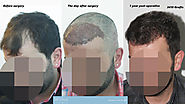 Hair Transplant 1 Year Post Op.