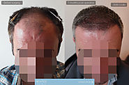 Hair Transplant 7 months Post Op