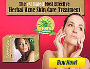 Natural Acne Supplements to Get Rid of Pimples, Dark Sports and Scars
