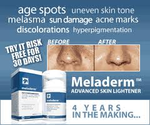 Best 10 Skin Lightening Cream Without Hydroquinone
