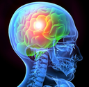 Mild Traumatic Brain Injury; Common And Not Mild At All
