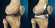Facts About Total Knee Replacement You Must Know