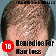 NATURAL HOME REMEDIES FOR BALDNESS / HAIR LOSS