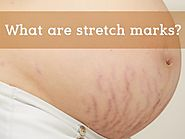 What are stretch marks? How can stretch marks be treated?