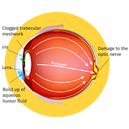 Glaucoma Treatment in Kolkata -  Currae Hospital