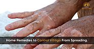 Home Remedies To Control Vitiligo From Spreading