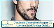 Get best Beard Transplant Surgery in uk – Rejuvenate Hair Clinics